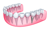 Dental Implants in Eldersburg, MD